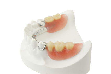 dental removable prothesis Removable dentures are one of the options to replace missing teeth we use partial dentures to replace one or a few teeth depending on the situation, partial.