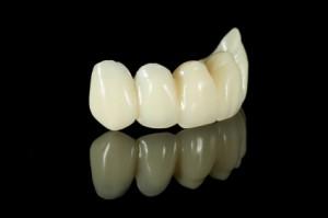 Dental brige