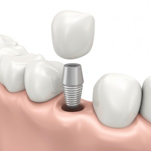 Fixed prosthesis on dental implants