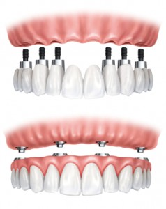 Dental prosthesis on implants