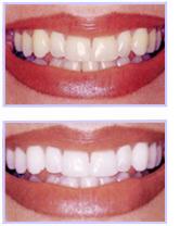 Montreal Dentist Teeth Whitening
